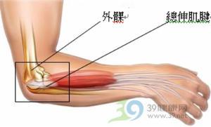 网球肘试验()_【转载】穴位的故事020下廉肘臂痛之要穴