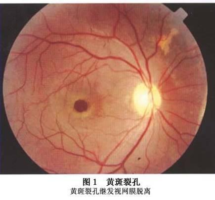 黄斑裂孔性视网膜脱离