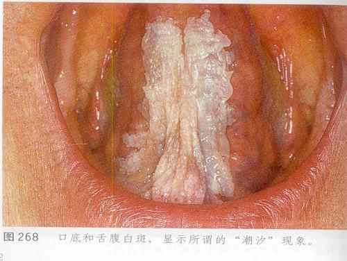 儿童口腔有疱疹图片