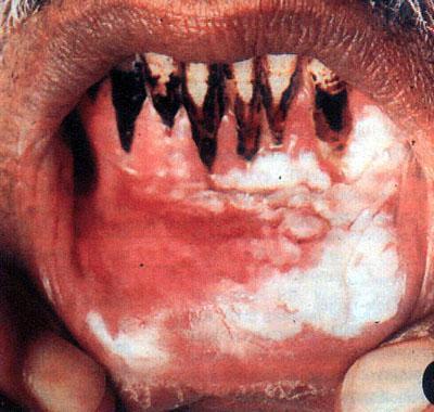 女性粘膜白斑多发于绝经期后的妇女