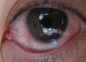 眼睛红血丝
