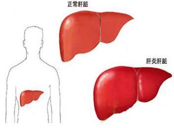 丙型肝炎知识普及