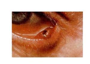 皮肤病大全_眼睑皮肤病