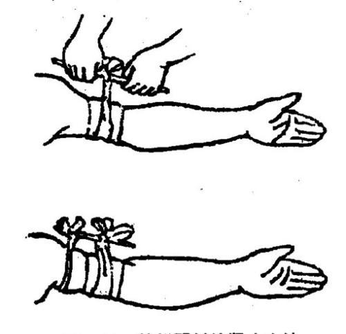 橡皮止血带结扎手法图解