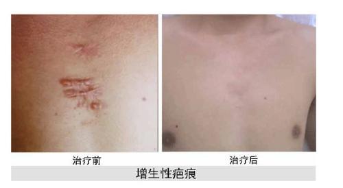 增生性疤痕的特點   早期局部疤痕腫脹充血變硬圖片