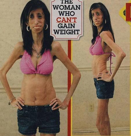 医师鼓励她吃大量脂肪