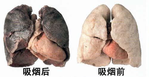 6~34倍孕妇被动吸烟可影响胎儿的正常生长发育