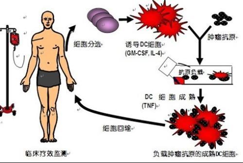 DC细胞免疫治疗技术 搜狗百科