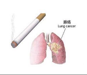 怎么样判断自己是否患上肺癌