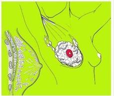 起支持作用和固定乳房位置的纤维结缔组织称为乳房悬韧带或coopers