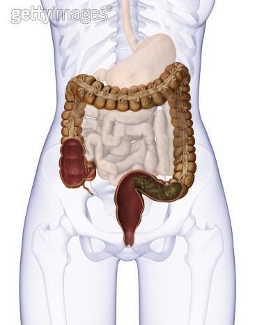 结肠腺癌 手绘图