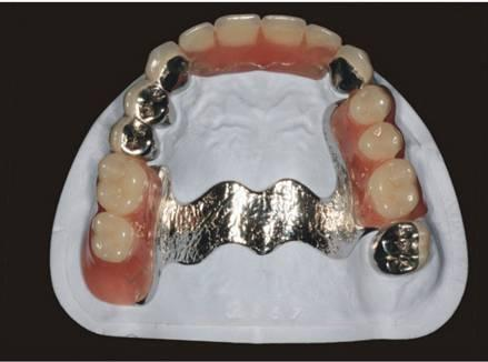 牙周夹板,赝复体