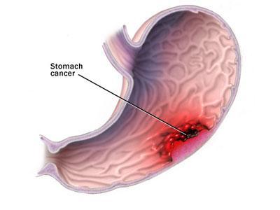 胃炎 胃炎的症状 鸡腺胃炎图片 胃炎的症状及治