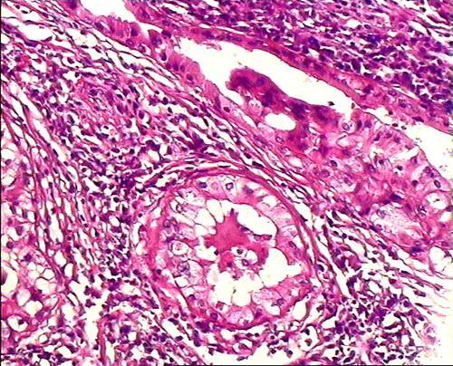 腺+��\y���l9�.����(c9��_腺泡细胞癌