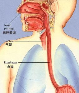 食管癌是由于哪些原因引起的-中期食道癌如何治疗