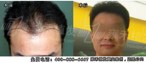 FUE-APL1.0无痕植发技术,意即高精密度移植术,由雍禾植发连锁机构自主创新,这项技术是在FUT/FUE技术基础上的完美升级,其最 大的特点是采用最精密的移植针在头发稀疏的部位,显微镜下做显微切口,避免损伤现有的毛囊单位,并且采用美国进口的无痕吻合缝合技术,将实现FUT和 FUE技术的密度和后枕部瘢痕的缺憾。