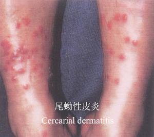 日本最大胆人体性囹d)_血吸虫尾蚴性皮炎