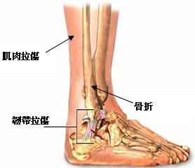 脚踝扭伤骨折症状
