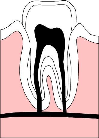 牙齿感觉过敏不是一种独立的疾病,而是各种牙体疾病共有的症状,发病的