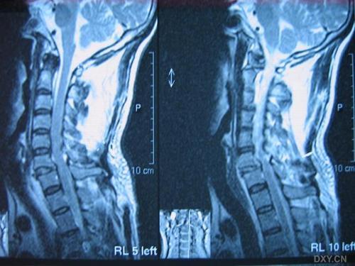 颈椎骨折脱位-+搜搜百科