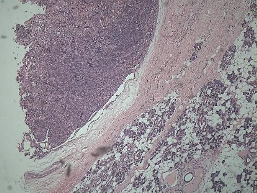 腺瘤红蓝手绘图