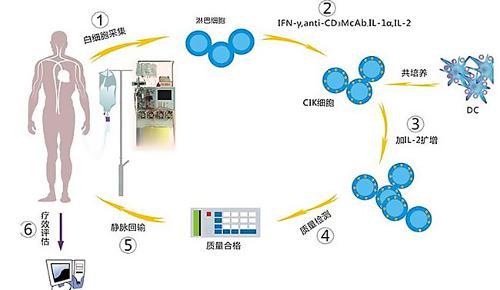 DC+CIK细胞治疗方案-细胞治疗 搜狗百科