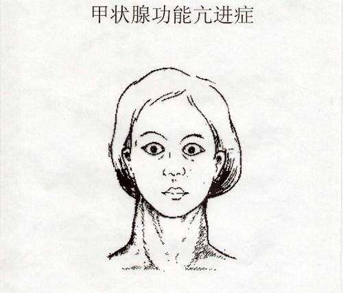 甲状腺 介绍
