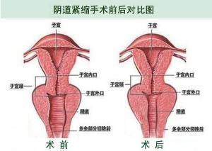 女性生殖整形 搜搜百科