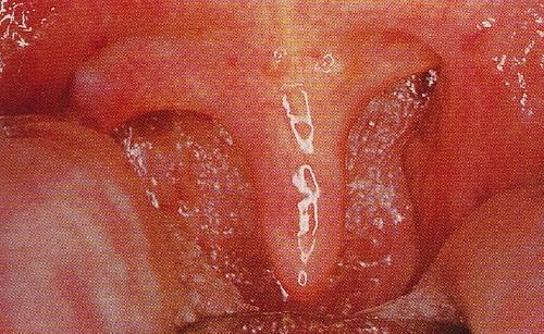 咽喉炎慢性咽炎什么牌子好 慢性咽炎根治异物