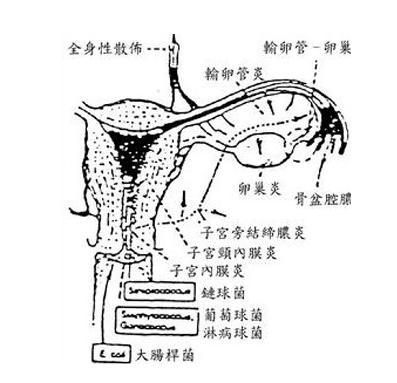 手绘子宫平面图