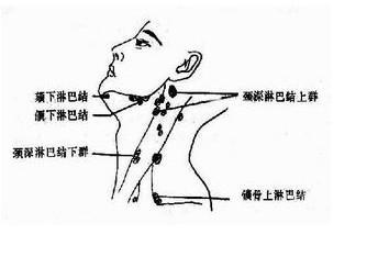 人体淋巴结分布�_但并不是每个人遇到细菌感染就会发生淋巴结炎,只有在人体抵抗力下降