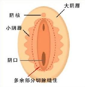 被操的阴唇合不上了_小阴唇在大阴唇内侧,也分为两片,它是保护阴道和尿道的第二道门户.