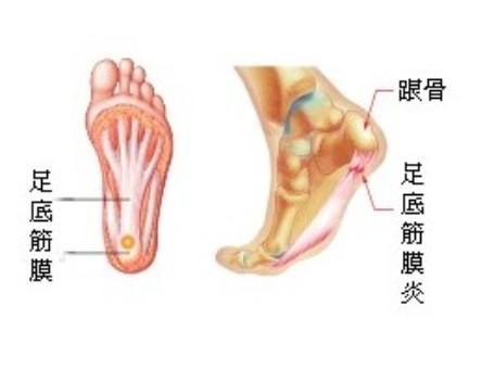 脚底骨骼结构图