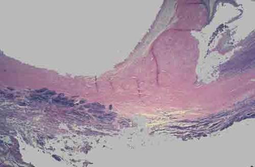 感染性心内膜炎