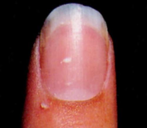 指甲结构图及分解