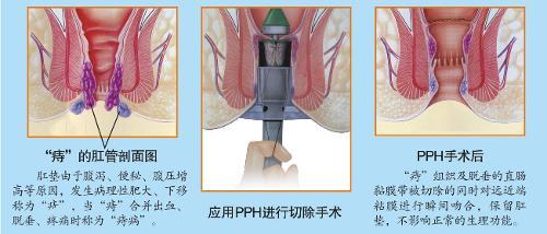 调节肛门生理功能