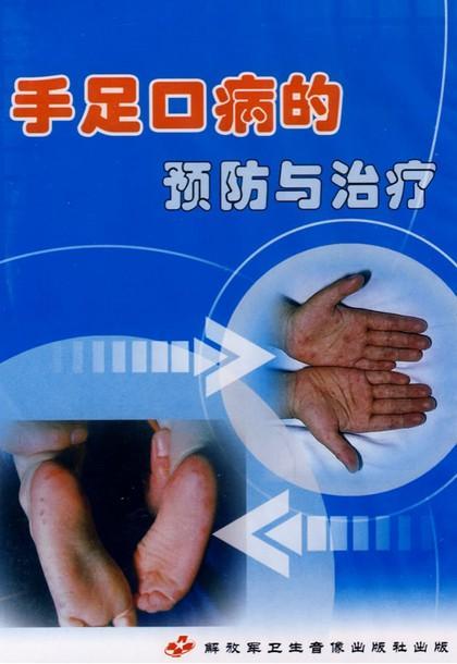 预防手足口病的10种消毒方法盛放排泄物的容器:用