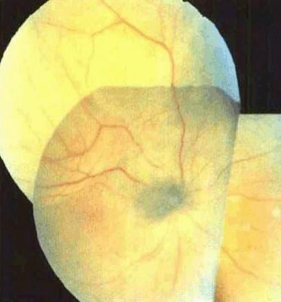 黑色素瘤早期囹�a_脉络膜黑色素瘤