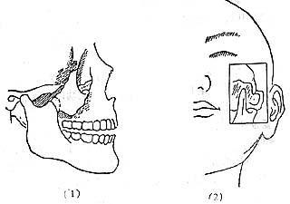骨折确诊症状