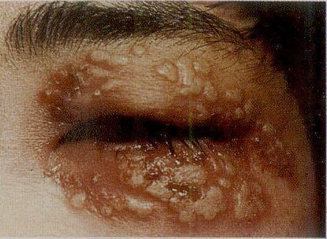 眼睑热性疱疹