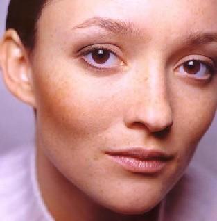 张月旺:黄褐斑病发的中医病理