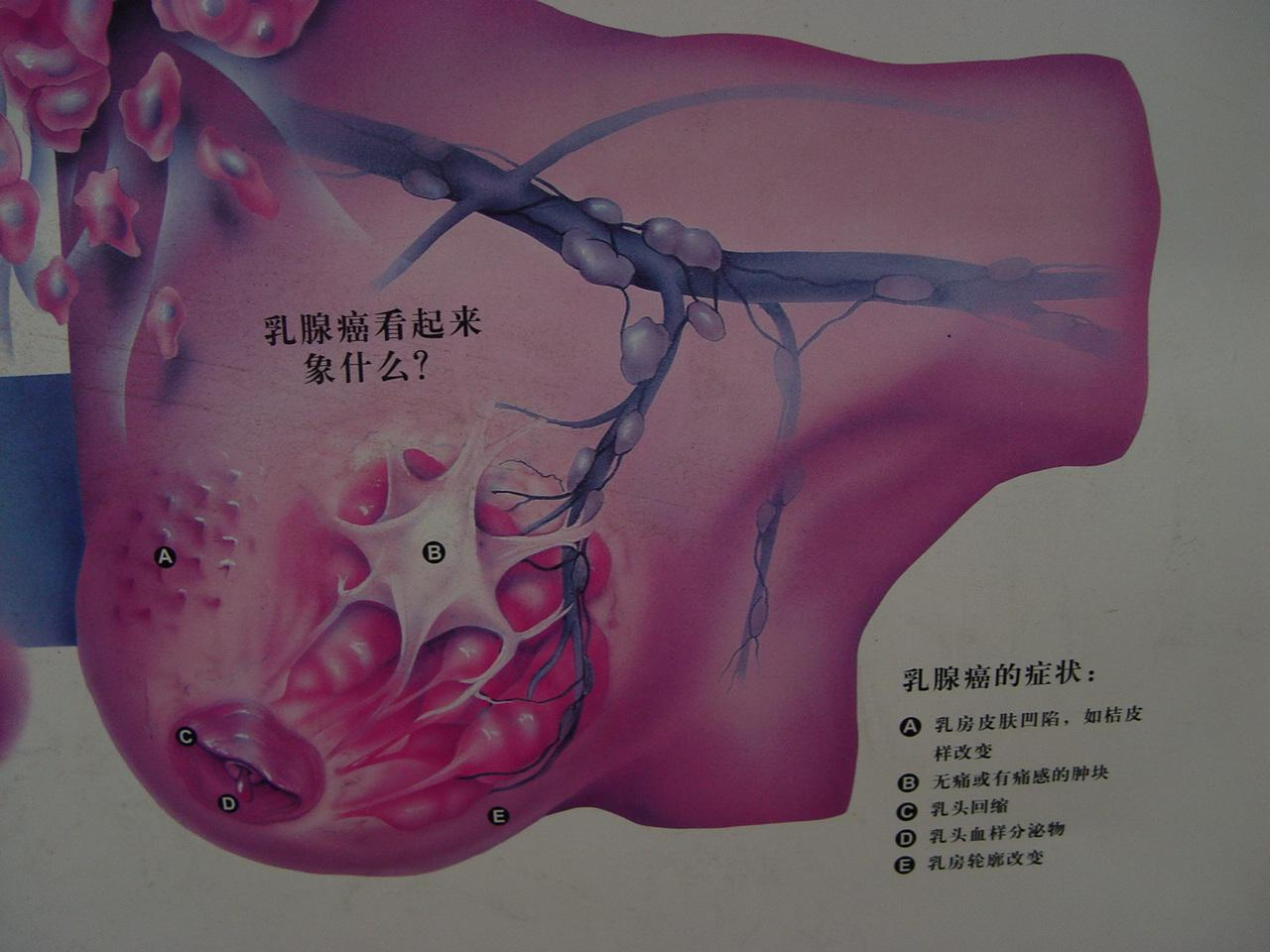 乳腺癌综合治疗