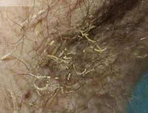 皮肤病图片及名称_腋毛癣 - 搜狗百科