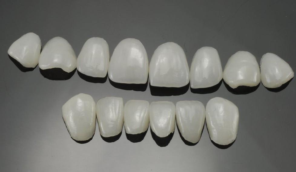 牙美容冠多少钱一颗