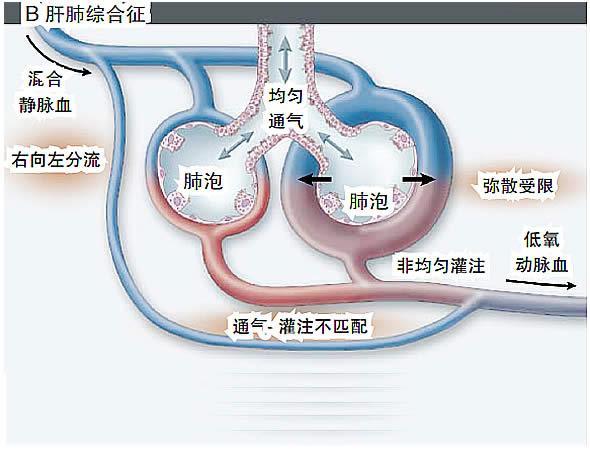 肝肺淤血手绘图