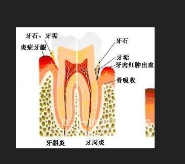 儿童牙床结构图