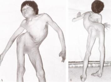 儿童脊柱突出图片
