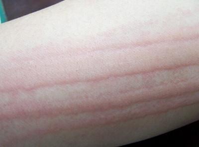 皮肤划痕征