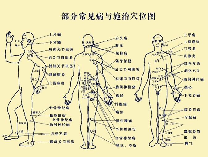 老年女性人体囹�a_电磁治疗仪
