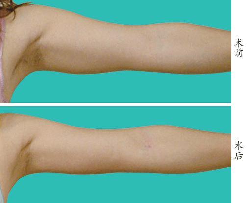 吸脂两周手臂凹凸不平